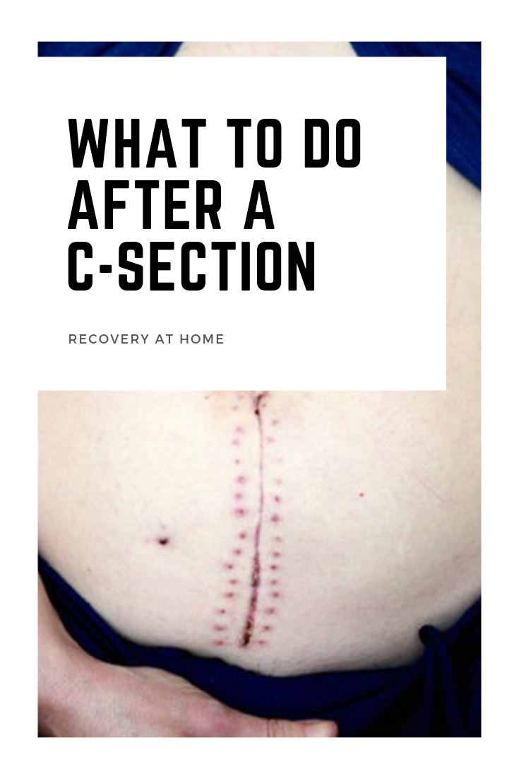Recovery at home - what to do after a c-section